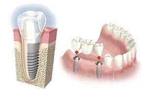 implantes Reus