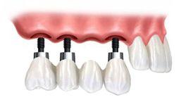 Protesis fija parcial sobre implantes