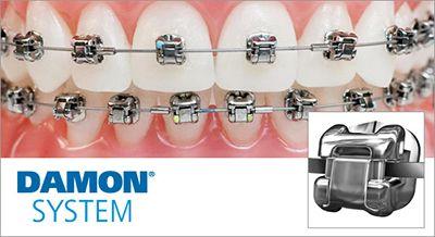 Dentista Reus Ortodoncia