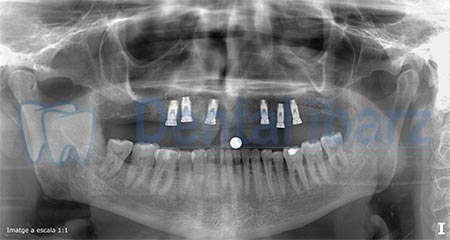 Ortopantomografía implantes después