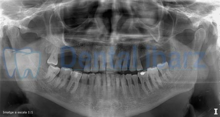 Ortopantomografía Implantes antes