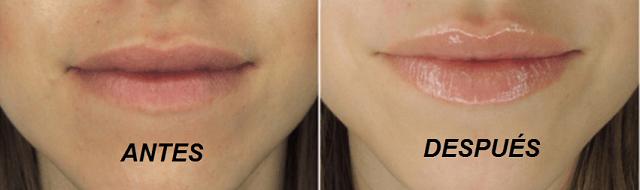 Ácido Hialurónico Labios