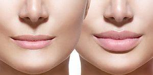 Ácido hialurónico aplicado a la Estética y Odontología